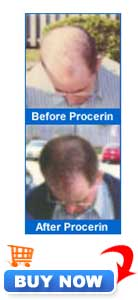 Before and After Procerin - Order Now
